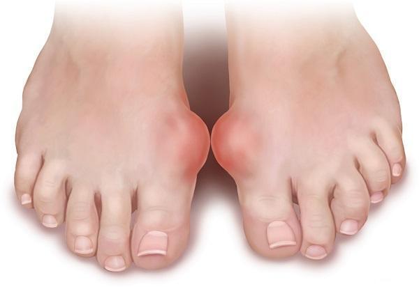 подагра на ногах народные методы лечения