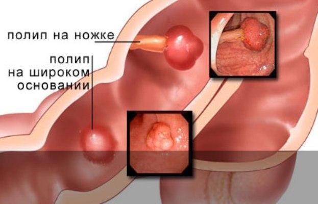 Полип желудка: симптомы, лечение, причины заболевания, диагностика, рецепты народной медицины, профилактика и диета.