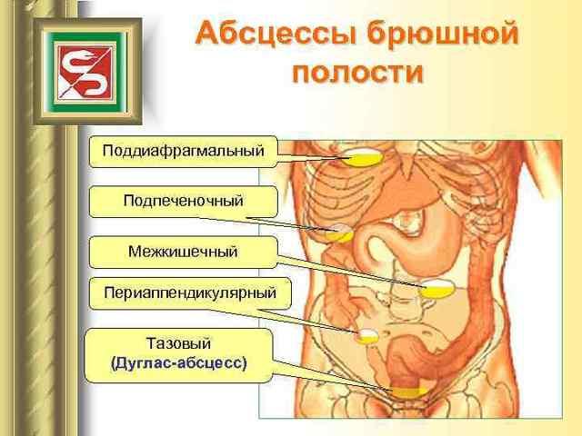 Тазовый абсцесс дугласова пространства: клиника, диагностика, лечение после аппендэктомии