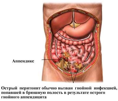 Перитонит — симптомы, первые признаки заболевания, причины, виды, диагностика, лечение, послеоперационный уход