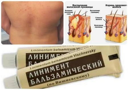 Мазь Вишневского: для чего применяется, инструкция, применение от прыщей