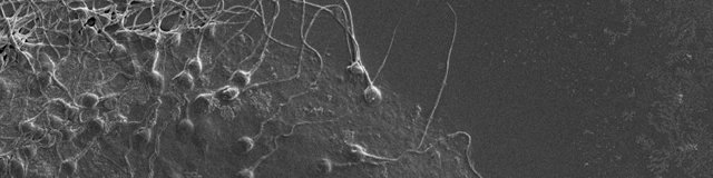 Биопсия яичка: что это такое, как проводится, последствия биопсии яичек