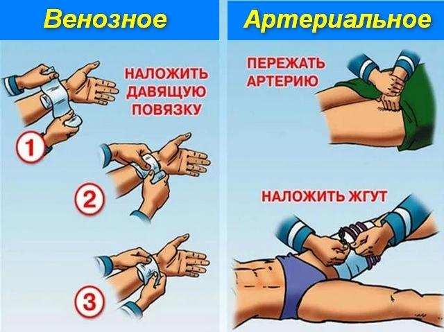 Первая помощь при кровотечении