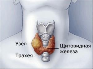 Лечение гиперплазии щитовидной железы: степени патологии, признаки гиперплазии щитовидной железы и методики лечения