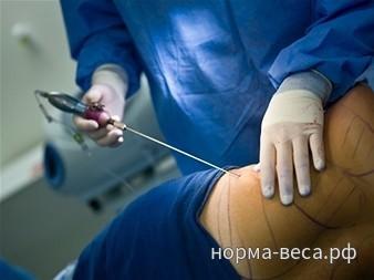 Хирургическое лечение ожирения – что такое ожирение, ИМТ, степени ожирения, показания и противопоказания хирургического лечения, осложнения, прогнозы, виды операций.