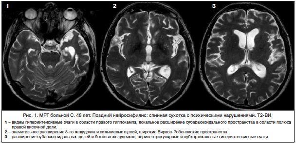 Нейросифилис: симптомы и лечение, формы, диагностика