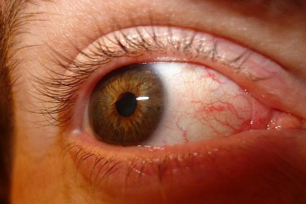 Почему болят глаза и возникает чувство усталости?
