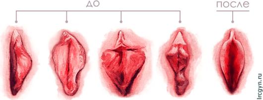 Как исправить дряблые и обвисшие половые губы?