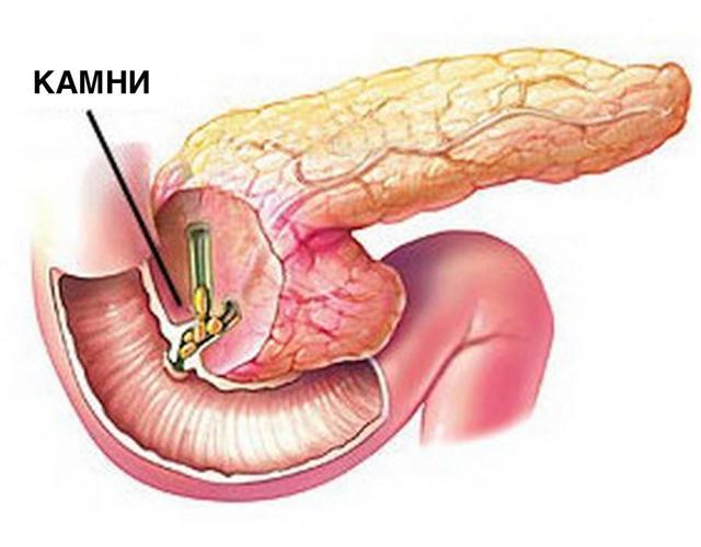 Камни поджелудочной железы: причины, симптомы, лечение панкреолитиаза
