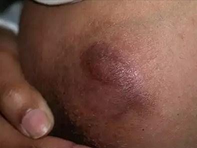 Выбухающая дерматофибросаркома кожи: причины, симптомы, лечение, прогноз, выживаемость