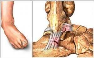 Вывих ноги в районе щиколотки: симптомы и лечение вывиха голеностопного сустава