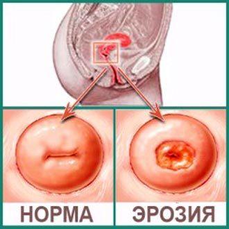 Кисты цервикального канала шейки матки: что это такое, симптомы и лечение