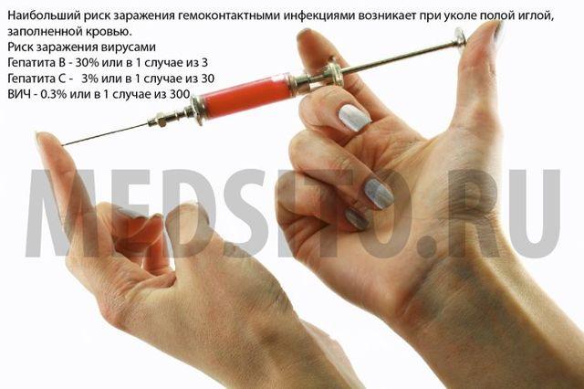 Обнаружил на руке укол от иглы, что делать и какая вероятность заражения?