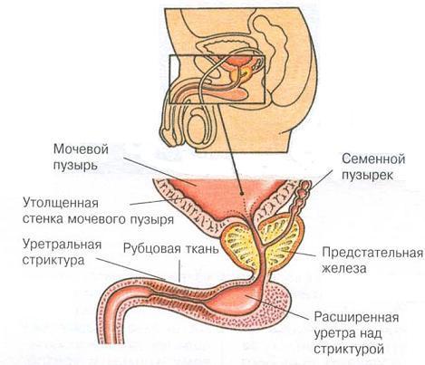 Стриктура уретры: симптомы и лечение сужения мочеиспускательного канала у мужчин и женщин