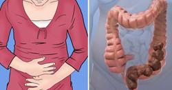 Дискинезия желудка: симптомы, лечение, причины, признаки, профилактика