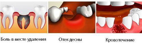 Осложнения после удаления зуба: что-то бело в лунке, сухая лунка, боль, температура