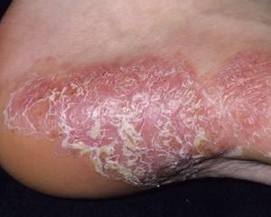 Генерализованный пустулезный псориаз Цумбуша: причины, симптомы, лечение