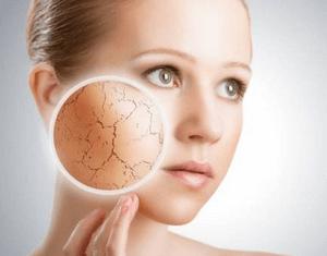 Экзема — причины, симптомы, стадии и лечение экземы у взрослых