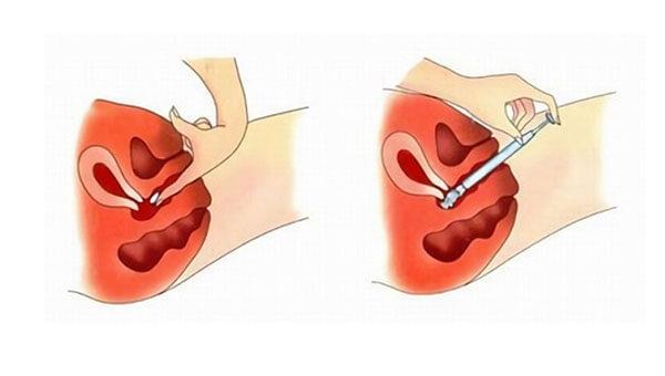 Клотримазол свечи: инструкция по применению при молочнице и при беременности