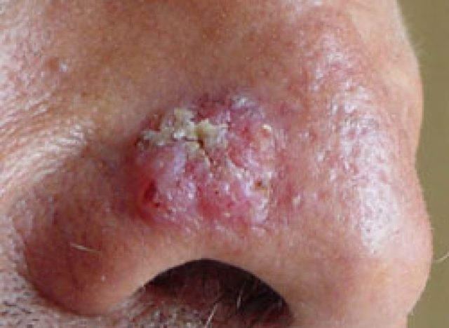 Базалиома лица, кожи носа: симптомы, лечение базально-клеточного рака кожи