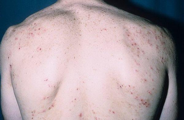 Герпетиформный дерматит Дюринга: симптомы, лечение, диагностика