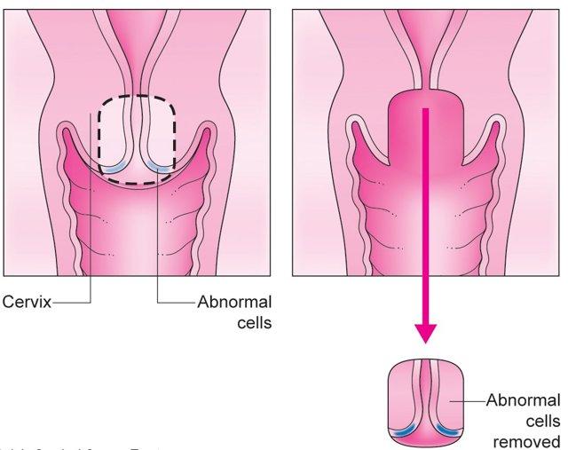 Как делают биопсию: порядок взятия биопсии для выявления рака, расшифровка биопсии.