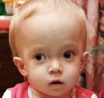 Мраморная болезнь у детей и взрослых: симптомы и лечение остеопетроза, причины развития