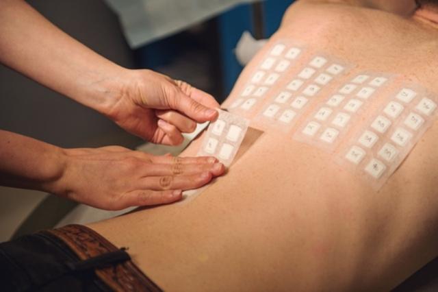 Аллергопробы по крови и кожные аллергопробы: показания, расшифровка результатов