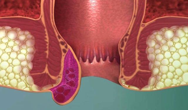 Средства от наружного геморроя, свечи при наружном геморрое, лечение геморроидальных узлов