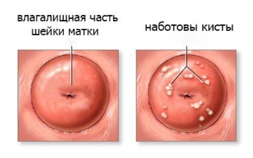 Наботова киста шейки матки: что это такое, симптомы и лечение, надо ли удалять