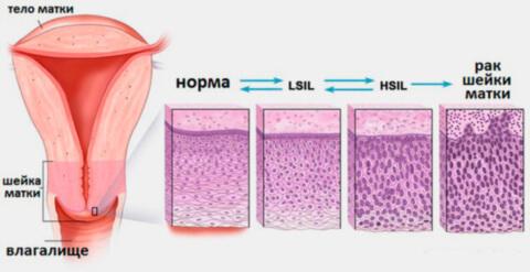 Дисплазия шейки матки: причины, симптомы, стадии, диагностика, лечение, профилактика.