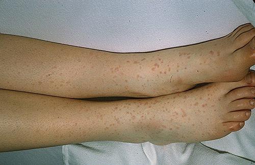 Аллергический васкулит – что это за болезнь, симптомы, лечение у детей и взрослых