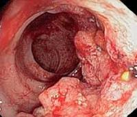 Свидетельствует дискомфорт в животе о колоректальном раке?