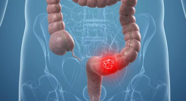 Аденокарцинома толстой кишки | ОкейДок