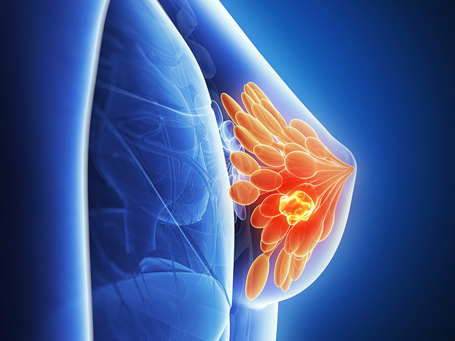 Саркома молочной железы: что это такое, симптомы, прогноз выживания, саркома на УЗИ