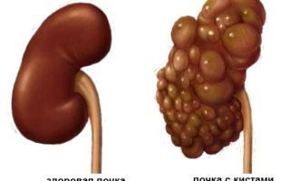 Поликистоз почек: симптомы, лечение, диета и народные средства при поликистозе почек