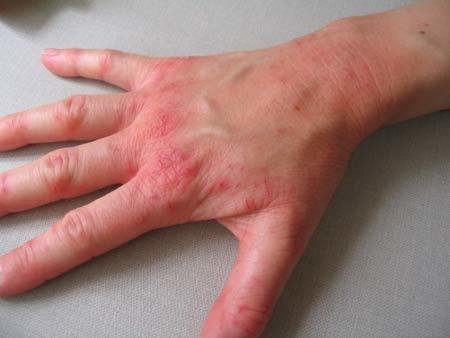 Нейродермит: что это такое, фото у взрослых, симптомы и лечение