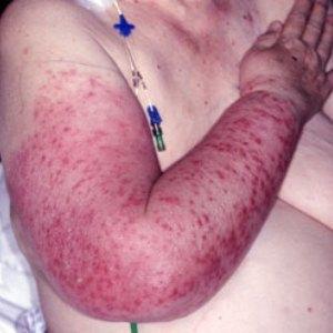 Рожистое воспаление — симптомы и лечение, признаки рожи и формы рожистого воспаления
