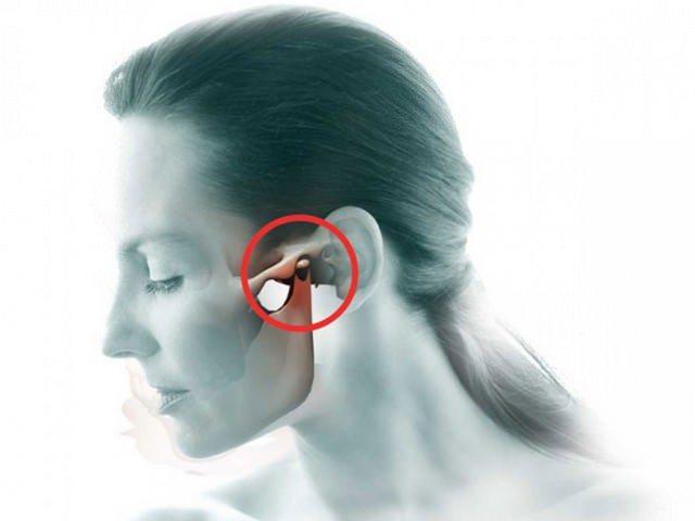 Артроз височно-нижнечелюстного сустава, артроз ВНЧС: симптомы и лечение