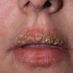 Импетиго: симптомы, причины, методы диагностики и лечения импетиго