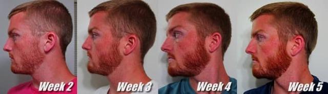Почему не растет борода в 18 лет и как ускорить рост волос на лице
