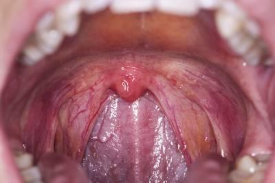 Почему сухой кашель не проходит: причины затяжного кашля