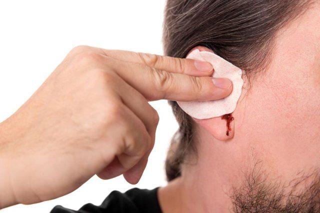 Кровотечение из уха: причины у взрослых, что делать, если из уха идет кровь