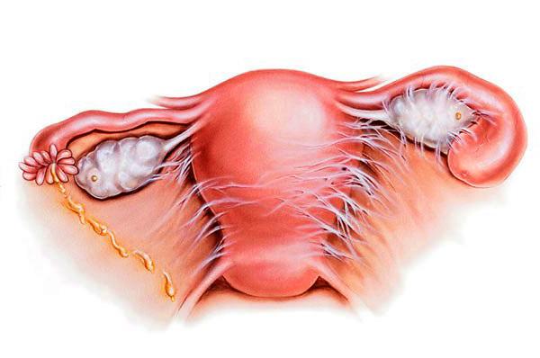 Эндометрит — симптомы и лечение острого и хронического эндометрита матки