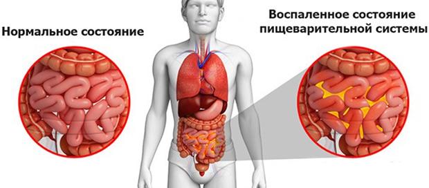 Резкая боль внизу живота и тянущая боль внизу живота у мужчин и женщин: причины