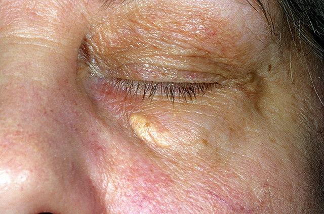 Ксантоматоз кожи у детей и взрослых: симптомы, фото, лечение, удаление