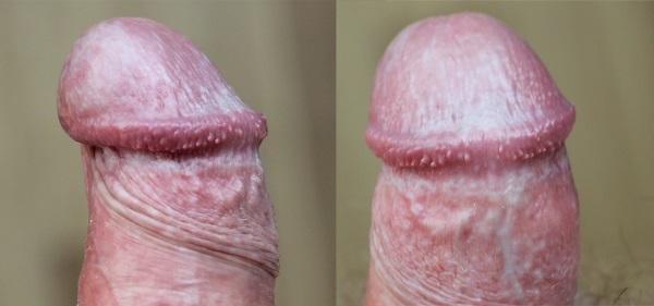 Лечение кондилом у мужчин, как лечить бородавки в паху у мужчин