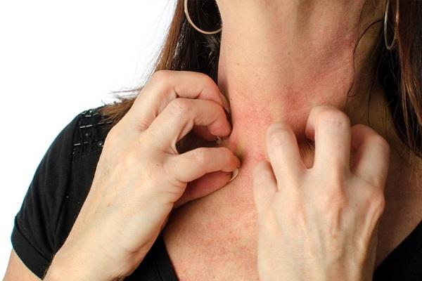 Изжога: причины, симптомы и методы лечения