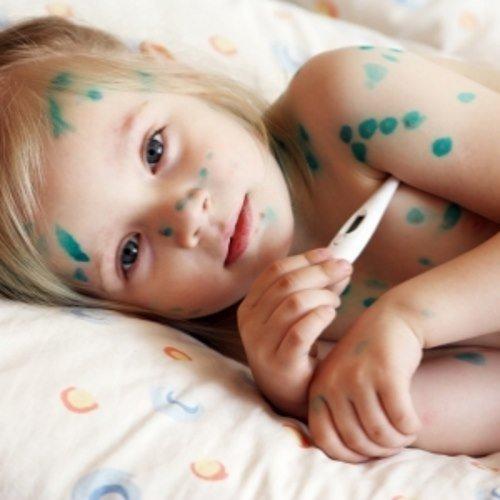 Ветрянка у детей: пути заражения, симптомы, лечение и профилактика