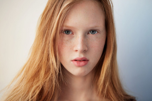 Очень чувствительная кожа: причины и правила ухода за чувствительной кожей